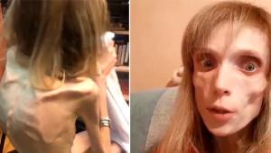 Anoreksiya Hastası Kadını Görenin Ağzı Açık Kalıyor! Sadece 17 Kilo