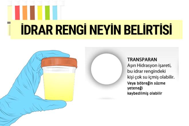 İdrar Renginiz Bordo ise Dikkat! Kötü Hastalığın Habercisi Olabilir