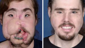 Kendini Yüzünden Vurup Paramparça Etmişti, Yüz Nakliyle Hayata Yeniden Döndü