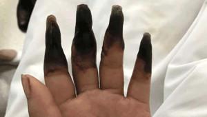 Ev işi Yaptıktan Sonra Neredeyse Parmağını Kaybeden Kadının Ellerini Görenler Dehşete Düştü
