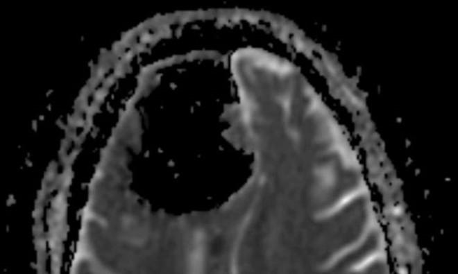 Baş ağrısı şikayetiyle hastaneye giden adam beyinsiz mi çıktı?