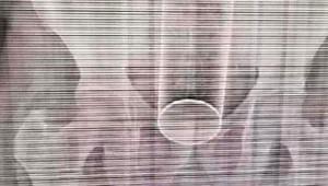 Yatak Fantezisi Kötü Bitti! 40'lık Adamın Makatından Oda Spreyi Çıktı
