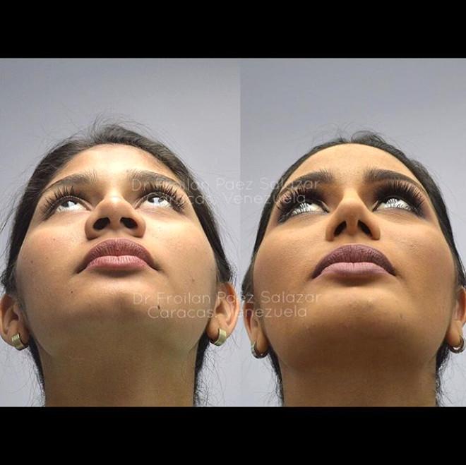 Kainat Güzelinin Bu Halini Unutun! Estetikli Fotoğrafı Sosyal Medyayı Salladı