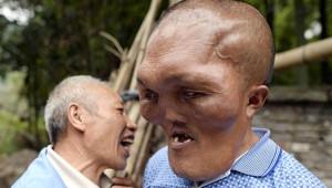 Dünya Üzerindeki Garip Hastalıklar, Görenlere Korku Salıyor!