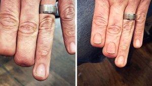 Kesik Parmaklarının Son Halini Gören İnanamıyor! Yaralarını ve Doğum İzlerini Kapatmak İçin Dövme Kullanan 45 Kişi