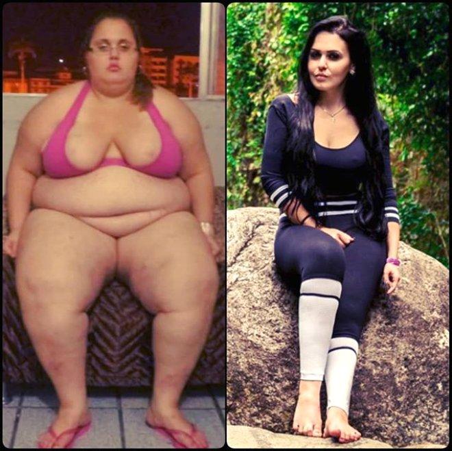 Obeziteden Yataktan Kalkamıyordu! 90 Kilo Verdi, Güzelliğiyle Fenomene Dönüştü