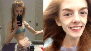 Anoreksiya Hastalığına Yakalanan Genç Kız, 28 Kiloya Düştüğünde, Hayatını 1 Adet Çikolata Kurtardı!