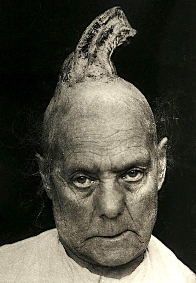 Kafasında Çıkan Boynuza Tıp Çaresiz Kaldı! 19. Yüzyıldaki Hastaların Ürküten Portreleri