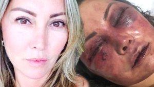 İnternetten Tanıştığı Adam Bu Hale Getirdi! Zavallı Kadın 4 Saat Boyunca Ölümüne Dayak Yedi