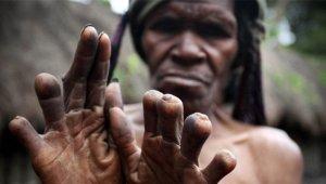 Bu Kabilede Akrabası Ölen Kadın ya da Çocuğun Parmağı Kesiliyor