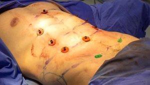 Estetik Operasyonda Son Nokta! Ameliyatla Baklava Yapıyorlar