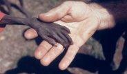 Açlıktan Ölmek Üzereyken Bulundu! İşte Tarihe Damga Vuran Unutulmaz Kareler