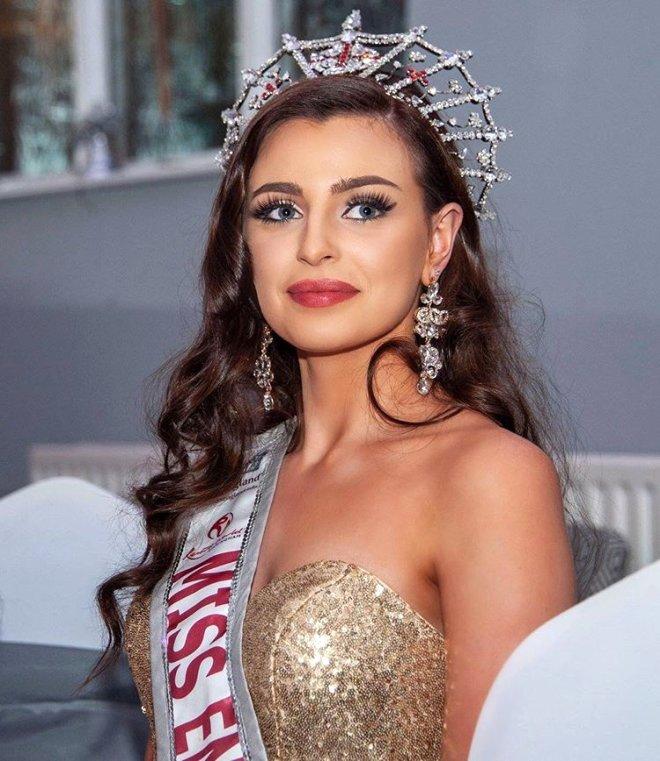 Türkiye'nin Tanıtım Yüzü Olacak Güzellik Kraliçesinin Sağlık Problemi Şoke Etti