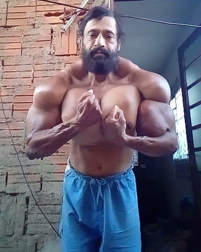 Her an patlayabilir! Brezilyalı Hulk, 60 santimlik pazularıyla tartışma yarattı