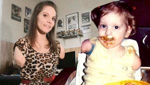 Doğduğunda kolları ve bacakları olmayan genç kadın, azmiyle tüyleri diken diken ediyor!