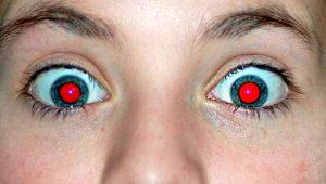 Fotoğraf çekerken flaş patlayınca, göz bebeklerimiz bakın neden kırmızı çıkıyor!