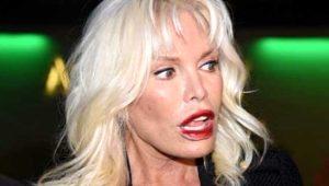 Süperstar Ajda Pekkan'ın geçirdiği estetik operasyonlara bakın! Yapmadığı kalmadı