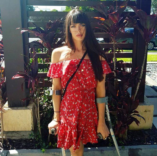 Bacağını kaybeden genç kıza ahlaksız mesaj! Bu kadarı da pes dedirtti