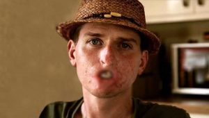 Kendisini sağlıklı sanan genç adam, et yiyen bakteriler yüzünden dudağını, kolunu ve bacağını kaybetti!
