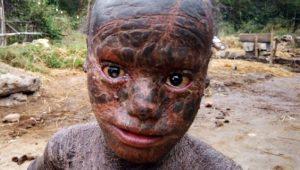 Hastalığı yüzünden 'yılan insan' diyorlar! 10 yaşındaki çocuğun cildini gören kahroluyor