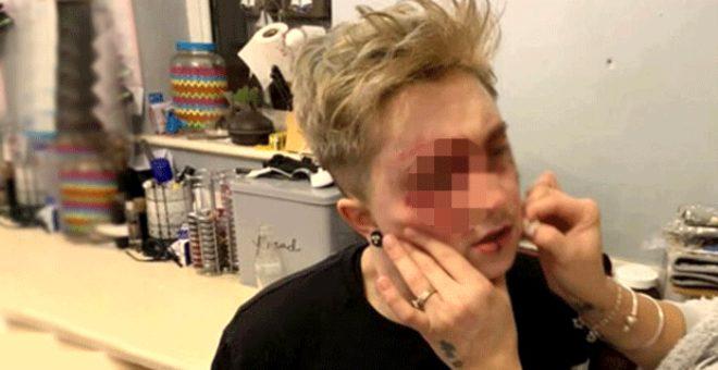 20 yaşındaki eşcinsel kıza sokak ortasında saldırı! Kanlar içinde kaldı