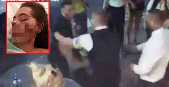 Gece kulübünün önünde bir erkek tarafından saldırıya uğrayan genç kadının ağzı parçalandı