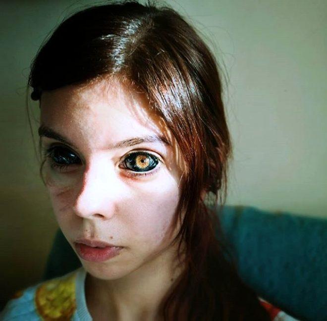 Hayranı olduğu şarkıcıya özenip gözlerine dövme yaptıran 25 yaşındaki genç kız kör oldu!