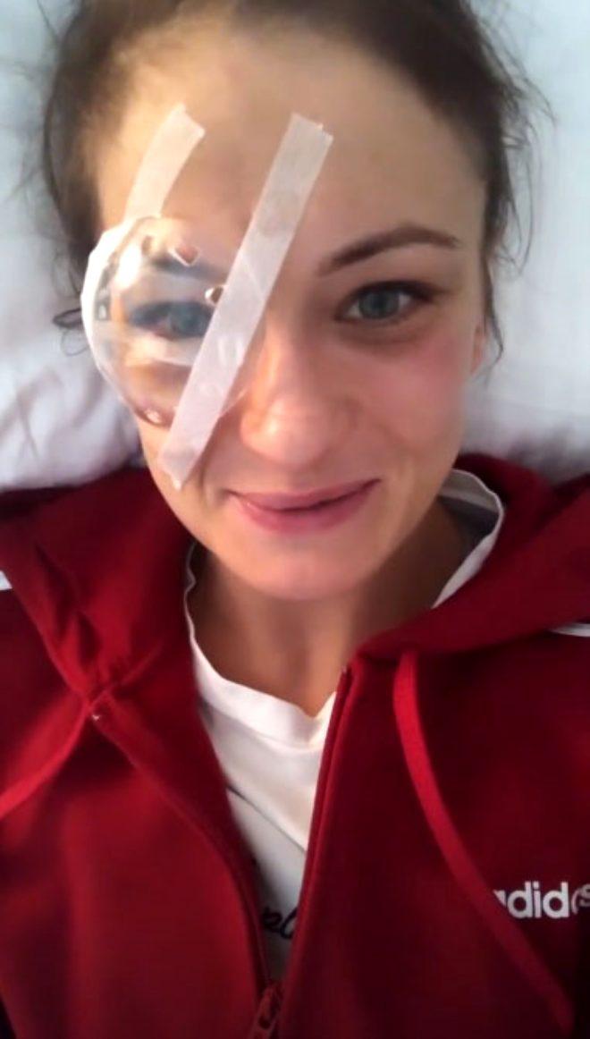 Yüzüne darbe alan UFC'nin yıldız dövüşçüsü Karolina Kowalkiewicz'in kariyeri sona erme tehlikesiyle karşı karşıya
