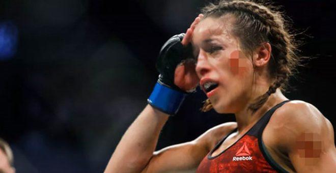 UFC'nin yıldız dövüşçüsü Joanna Jedrzejczyk'in aldığı darbe sonrası yüzü şekil değiştirdi