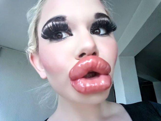 Barbie'ye benzemek isteyen genç kız dudağına 20'den fazla dolgu yaptırdı