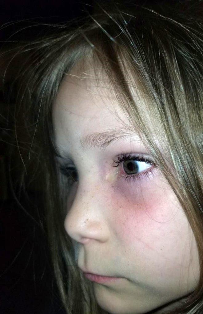Acı içerisinde uyanan 6 yaşındaki kızın gözünden bezelye tanesi büyüklüğünde böcek çıktı