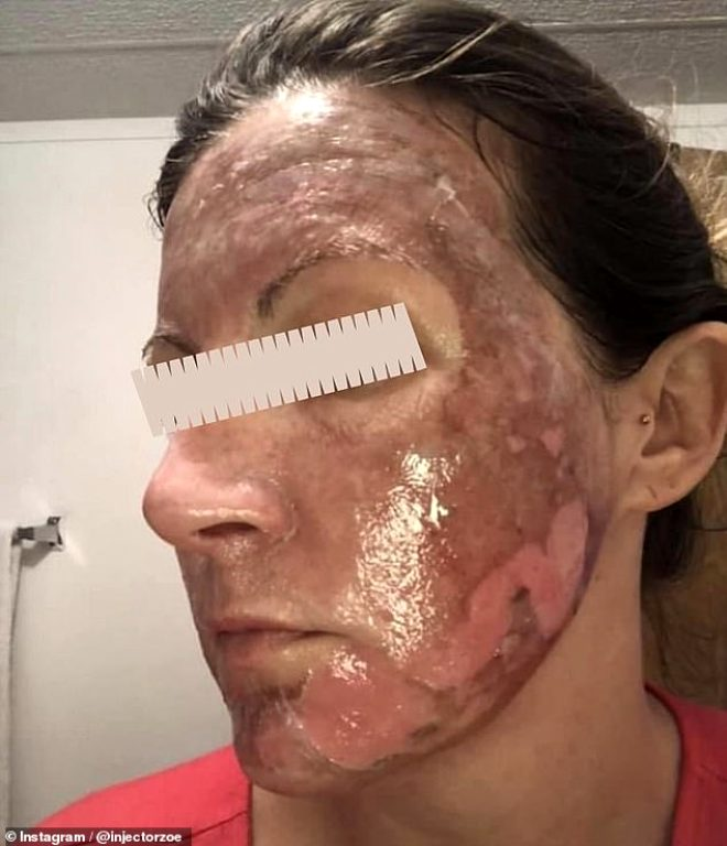 Kimyasal cilt temizleme losyonunu kullananların yüzleri yandı! Hemşire korkunç fotoğrafları bir bir paylaştı