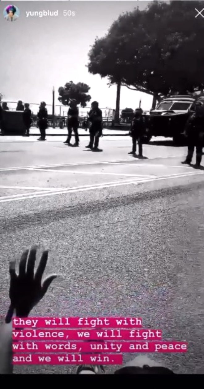 George Floyd protestolarına katılan ünlü şarkıcı Halsey, plastik mermi ile vuruldu