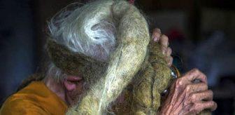 Gördüğünüz an kaşınmaya başlıyorsunuz! 92 yaşındaki adamın saçları 80 yıldır ne su ne de tarak gördü