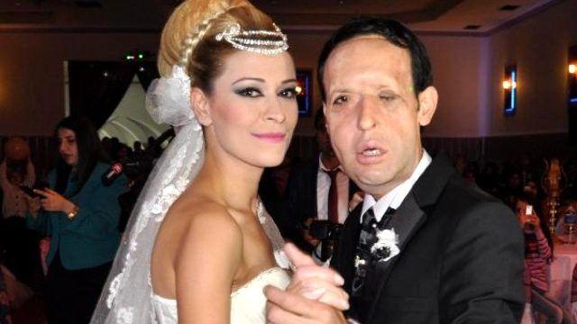 Yüz Nakilli Recep Sert'in Düğünü Öncesi Kına Gecesinde Mutluluk Gözyaşları (2)