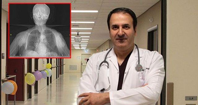 91 yaşındaki adamın akciğerinden 10 santimetrelik çivi çıktı