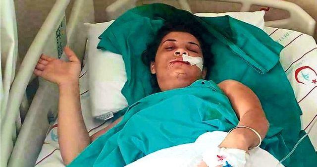Eski kocası tarafından şiddet gören kadın: Emine gibi ölmek istemiyorum, devlet bizi korusun