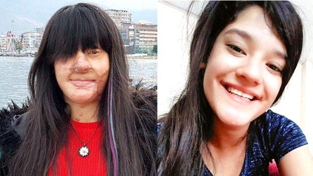 Berfin Özek, hayatını karartan asitli saldırganı affetti
