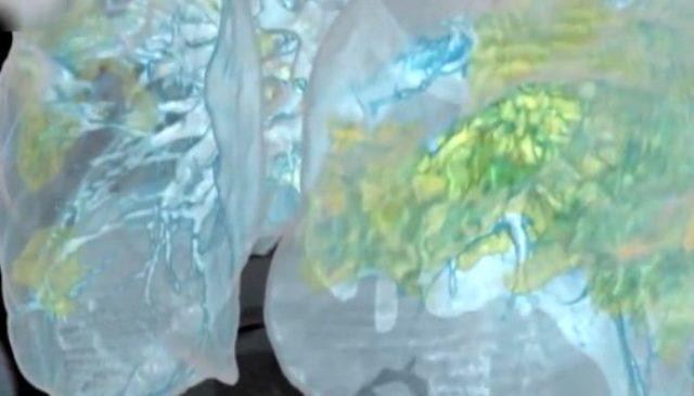 Koronavirüsün hücrelerde yarattığı tahribat elektron mikroskobu ile görüntülendi