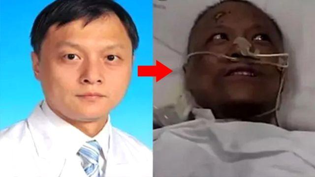 Bilim insanları şaşkın! Çin'de koronavirüsü yenen 2 doktorun ten rengi değişti