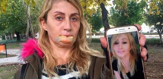 Dolgu yapılan dudağını kaybeden Songül, artık yemek yiyebiliyor