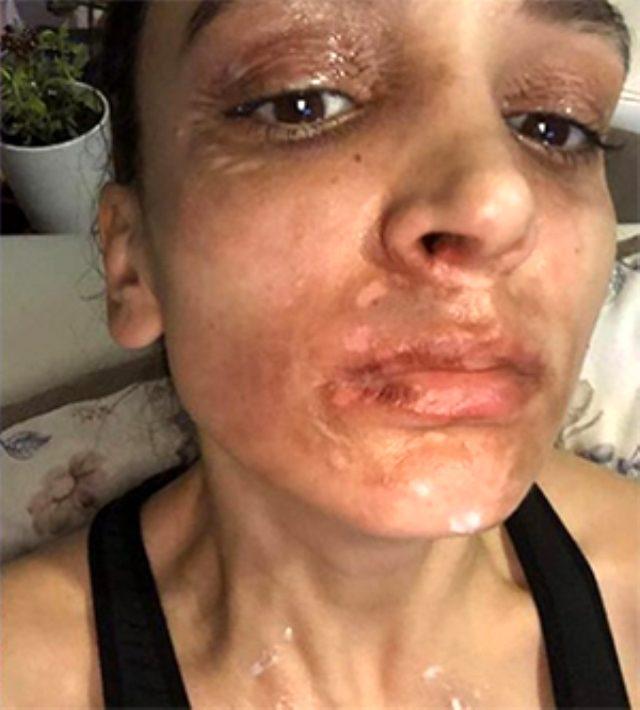 Lavabo açıcı bomba gibi patladı! Kadının yüzünde 2'inci derece yanıklar oluştu