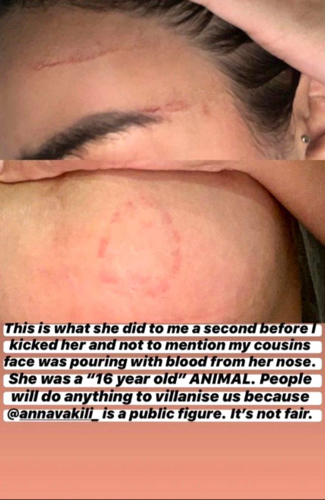Aşk Adası'nın tanınan ismi Anna Vakili, bir parkta genç kızla kavga etti