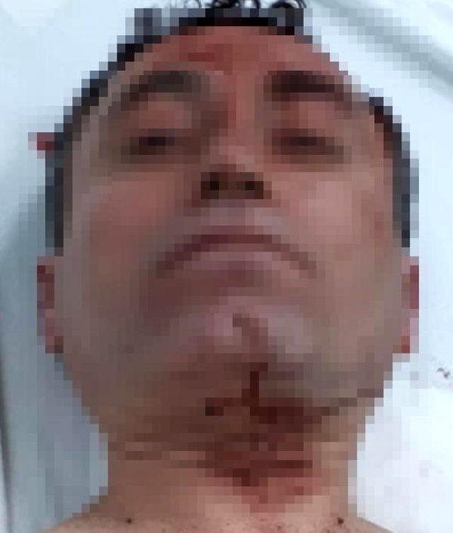 Sevgilisinin kafasında içki şişesi kıran alkollü kadın, öfkesini alamayınca bıçakla saldırdı