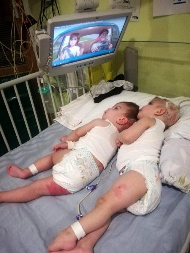 Özel operasyonla birbirlerinden ayrılan Antalyalı siyam ikizlerinden ilk fotoğraf geldi