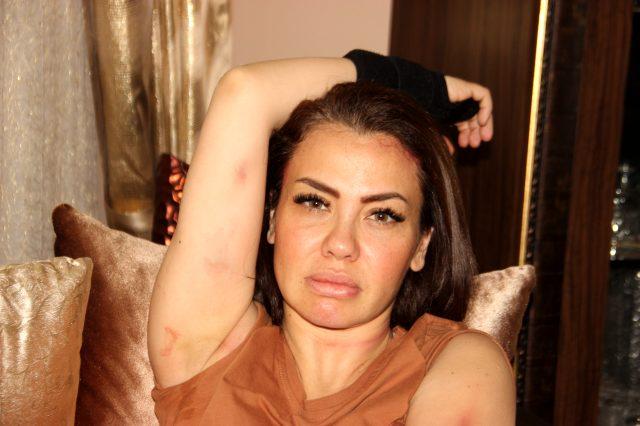 Feci kazadan yaralı kurtulan şarkıcı Lara o anları anlattı