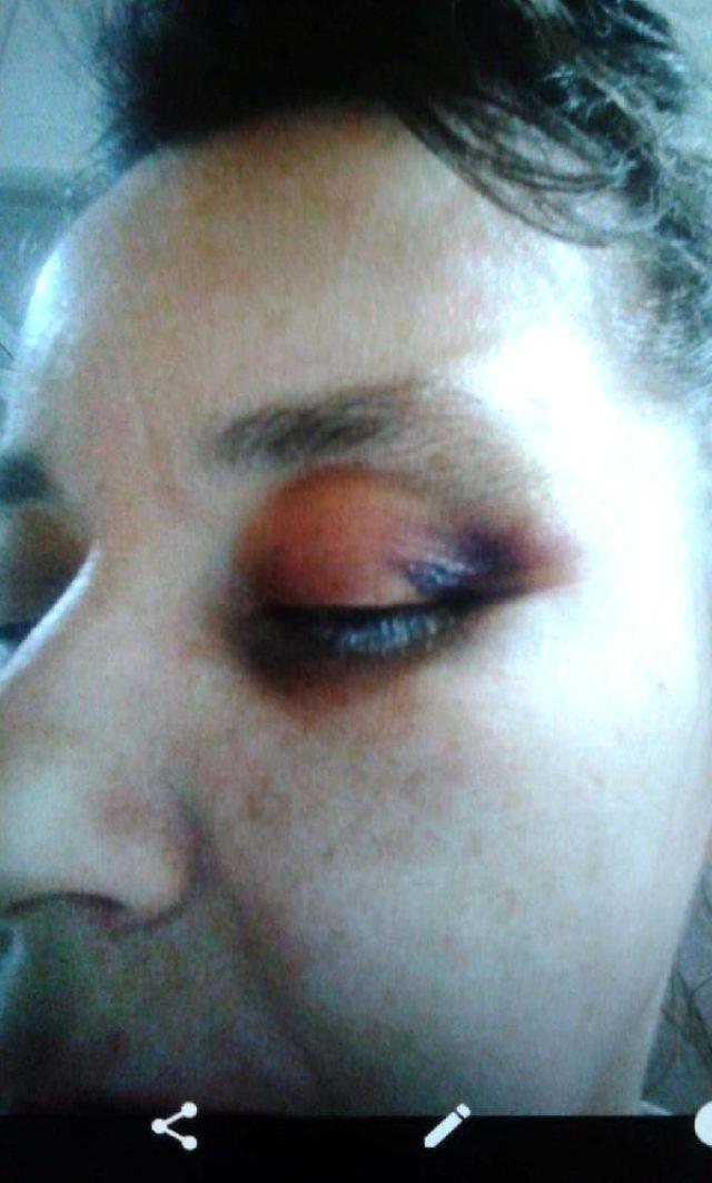 Hekim abisinin öldüresiye darbettiği kadın, dehşet anlarını anlattı