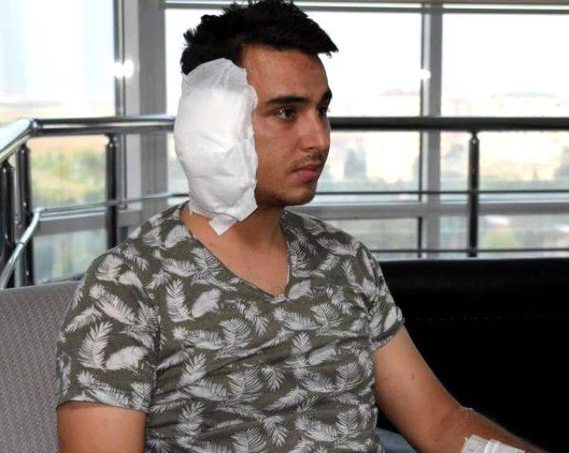 Postacının kavga sırasında ısırılarak kopan kulağı yerine dikilemedi
