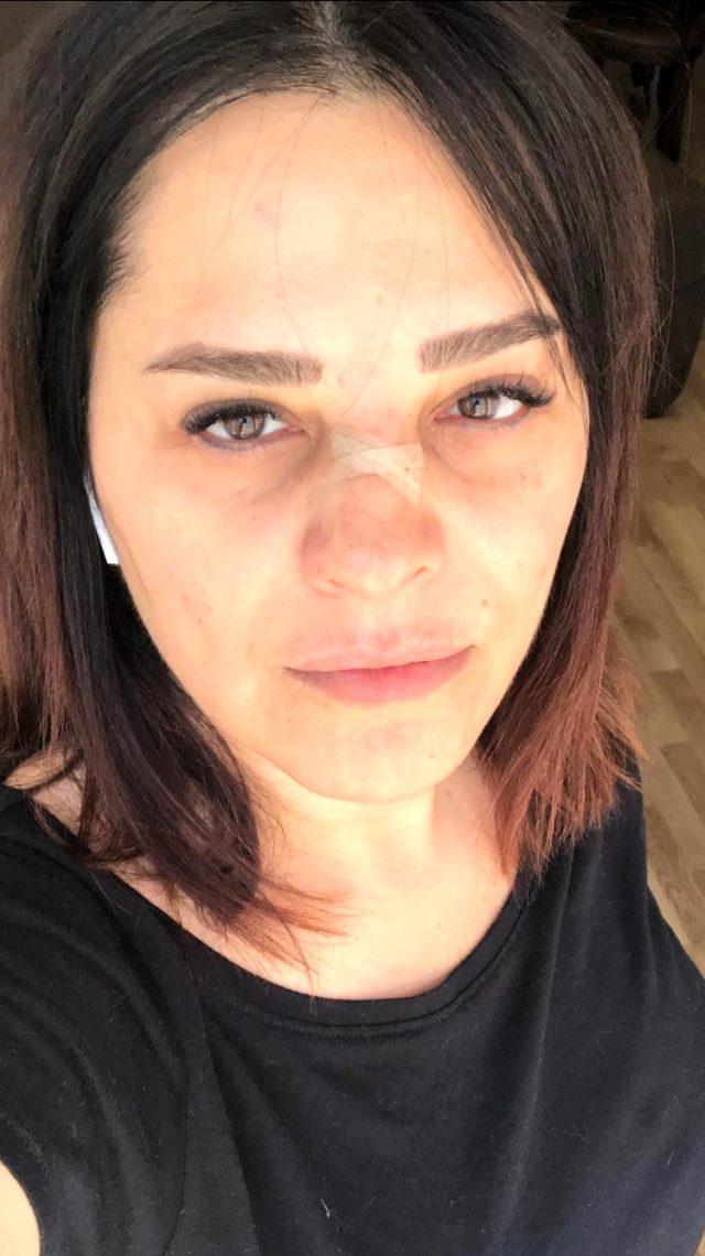 Ünlü şarkıcı Reyhan Karaca, talihsiz bir kaça geçirdi