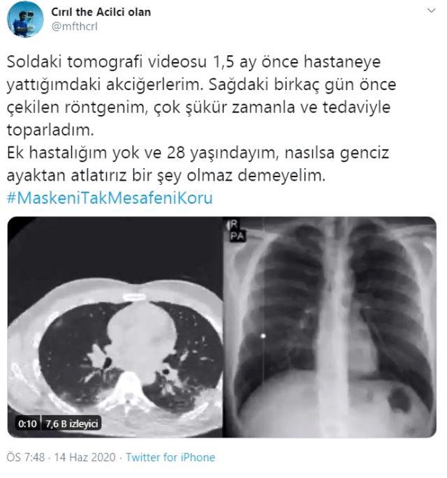 Koronaya yakalanan genç doktor, tomografi görüntüsüyle gençleri uyardı